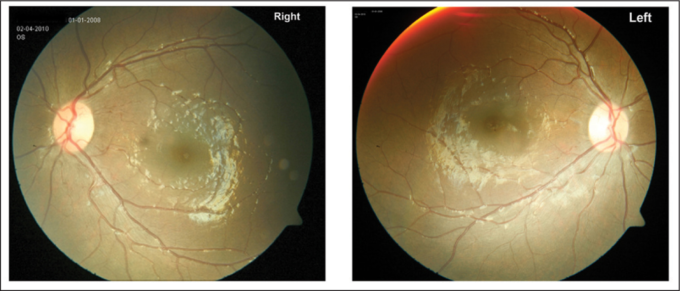 Both Eyes of the Patient's Sibling are Normal on Fundus Photograph.