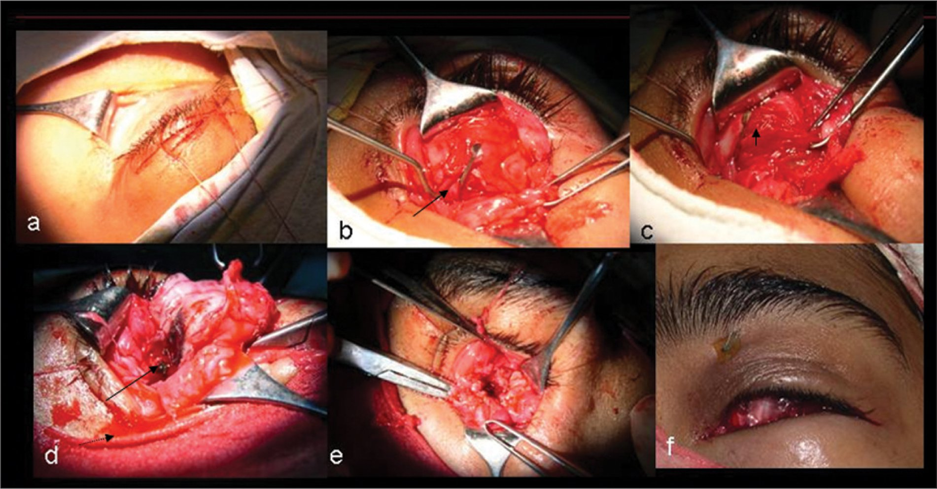 (A) Intraoperative Photographs of Subconjunctival Sclera-Like Structure with Absent Normal Eyeball. (B) Hooked Lateral Rectus Muscle (arrow). (C) Multilayered Anterior Cyst Wall Revealed on Further Dissection (arrow). (D) Opened up One Loculi of the Cystic Structure with Dark Pigmented Structure Representing Rudimentary Uveal Tissue (long Arrow). Note the Xanthochromic Fluid Coming Out of the Cyst (small Arrow). (E) The Remaining Posterior Mass that Was Covered with Conjunctival Tissue. (F) Conformer in Place Along with Superior Fornix Formation Sutures.