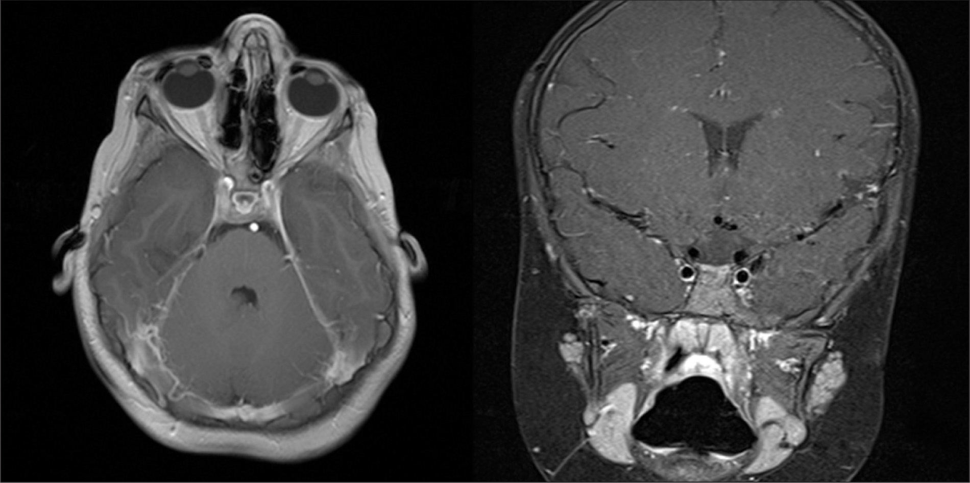 Magnetic Resonance Imaging of the Brain, Including Axial and Coronal Images, Showing Mild Atrophy of the Optic Nerves and Chiasm.