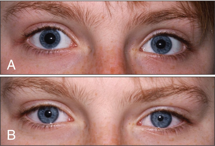 External Clinical Photograph Showing Bilateral Adie's Pupils. The Photograph's Flash Power Was Standardized in Both Occasions. (A) Asymmetrical Dilated Pupils While Looking for Distance. (B) Bilateral Constricted Pupils Due to Supersensitivity to the Weak Pilocarpine Drops.