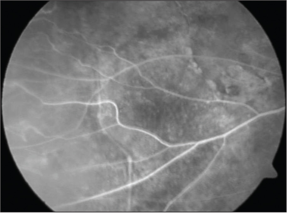 Peripheral Retinal Ischemia in the Temporal Quadrant of the Right Eye.