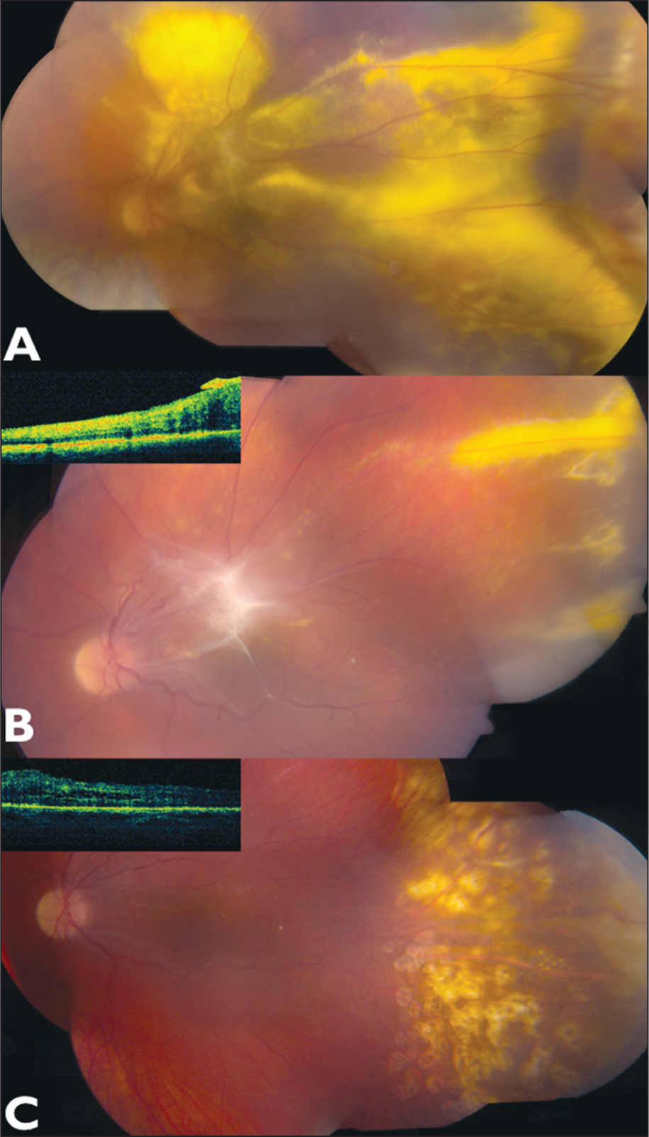 A 15-Year-Old Girl with Cicatricial Retinopathy of Prematurity in Her Left Eye Presented with Blurred Vision in Her Left Eye for 7 Months. (A) Montage Photograph of the Left Eye Showed Mild Vitritis, Vitreous Fibrosis over the Fovea, Diffuse Macular and Extramacular Exudation More in the Temporal Periphery with Total Retinal Detachment, Dragging of the Temporal Arcades, and a Vasoproliferative Tumor in the 3-o'clock Periphery. (B) Eight Months After Plaque Radiation, Tumor Regression and Significant Improvement in the Amount of Exudation and Subretinal Fluid Was Seen with Vitreomacular Traction from a Dense Epiretinal Membrane and Vitreous Fibrosis over the Macula that Needed Surgery Confirmed with Optical Coherence Tomography (inset). (C) Twenty Months After Plaque Radiation, There Was Complete Tumor Regression and Resolution of Subretinal Fluid and Exudation (inset).
