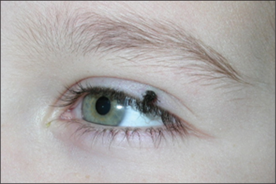 Case 3 at Presentation Displaying a Localized Tuft of Ectopic Cilia Involving the Lateral Left Upper Eyelid.