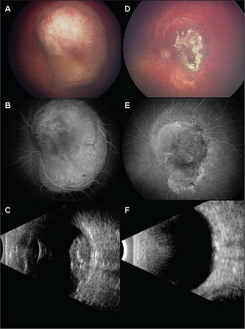 (A) Color Fundus Photograph Taken During Examination Under Anesthesia Showing a Large Retinal Mass, Overlying the Optic Disc and Fovea, Measuring 16 × 14 × 6.5 mm. Subretinal Fluid Surrounded the Lesion. (B) Fluorescein Angiogram Showing Prominent Tumor Vascularity with Hyperfluorescence. (C) B-Scan Ultrasonography Demonstrating an Acoustically Solid Dome-Shaped Retinal Mass with Areas of Calcification and Corresponding Posterior Shadowing. (D) At 1-Year Follow-Up, Color Fundus Photograph Showed Complete Tumor Regression to a 60% Calcified Scar Measuring 12 × 8 mm in Diameter and 1.4 mm in Thickness as Measure with Ultrasonography. (E) Fluorescein Angiogram at 1-Year Follow-Up, Showing Intact Retinal and Choroidal Perfusion Without Vascular Obstruction. (F) B-Scan Ultrasonogram at 1-Year Follow-Up Demonstrates a Flat Scar with Areas of Calcification and Corresponding Posterior Shadowing.