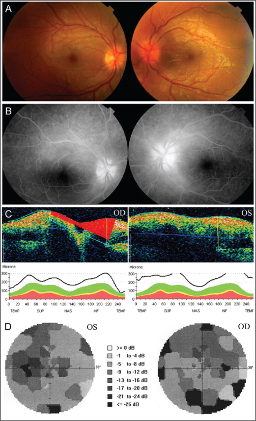 (A) Fundus photographs at the initial ocular manifestation showing edema and hyperemia of bilateral optic discs, tortuosity and engorgement of retinal vessels, and macular star-shaped exudation in the left eye. (B) Fluorescein angiography showing dye leakage at bilateral optic discs. (C) Optical coherence tomography showing bilateral disc edema and swelling of peripapillary nerve fiber layers. (D) Visual field testing showing enlarged blind spots, central and paracentral scotomas, and superior and inferior arcuate defects. OD = right eye; OS = left eye.