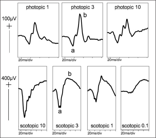 Generalized retinal function measured by full-field flash electroretinograms fell within normal limits, at the 5th centile. Right eye electroretinograms are shown for a series of flash strengths presented photopically and scotopically. Waveforms show expected changes in amplitudes of a- and b-waves and time to peaks.
