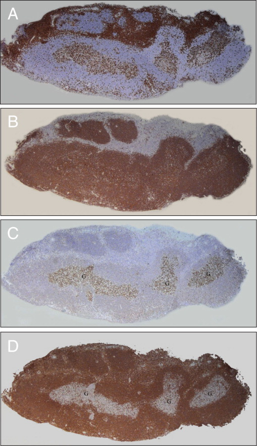 Immunohistochemical stains show a mixed infiltrate of T-cells with CD3 (A), but a predominance of B-cells with CD20 (B). Positive staining with BCL-6 (C) and negative staining for BCL-2 (D) in the germinal centers show an inverse relationship of expression consistent with reactive secondary lymphoid follicles (original magnification ×31).