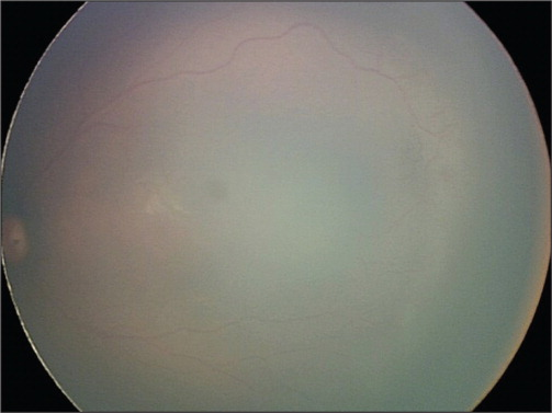 Fundus photograph of the left eye showing stage 1, zone II retinopathy of prematurity.