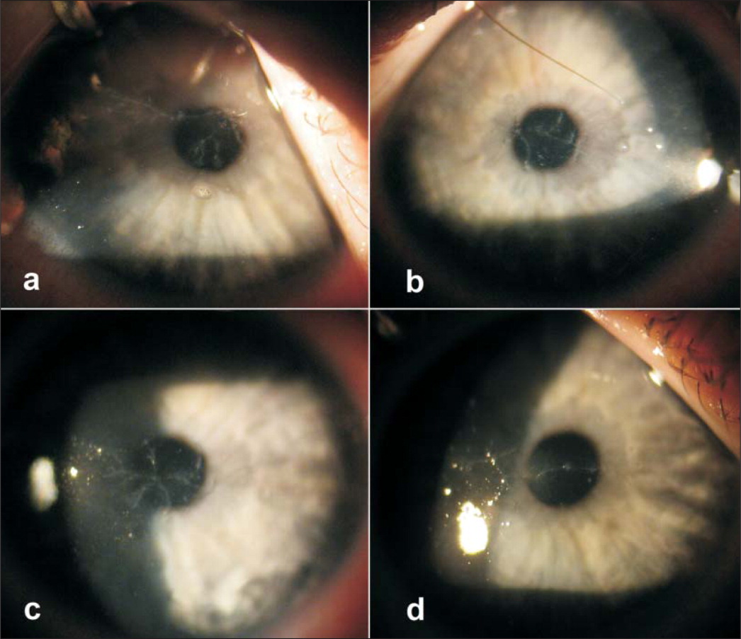 Slit-lamp photograph of the (A) right and (B) left eye of the first patient and the (C) right and (D) left eye of the second patient, respectively, demonstrating presence of filamentous superficial haze with dendritiform pattern, which was composed of multiple raised clear intraepithelial lesions.