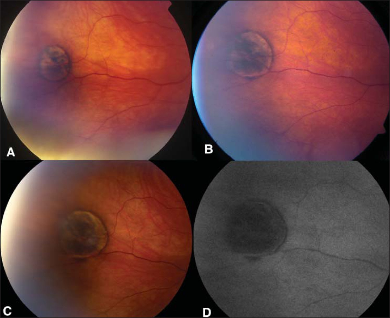 Evolution of congenital hypertrophy of the retinal pigment epithelium over 22 years. The lesion was noted when the patient was 2 years old as a tiny retinal pigment epithelium clump. (A) When the patient was 12 years old, the lesion was larger at 2 mm diameter and had pigmented halo. (B) When the patient was 18 years old, the lesion increased to 4 mm diameter and had slight darkening of color and noticeable peripheral depigmented and pigmented halo. (C) When the patient was 24 years old, a slight increase in base to 4.25 mm with more definitive halo was noted. (D) Fundus autofluorescence at age 24 years revealed intense hypofluoresence of the pigmented area and normofluorescence in the lacunae.