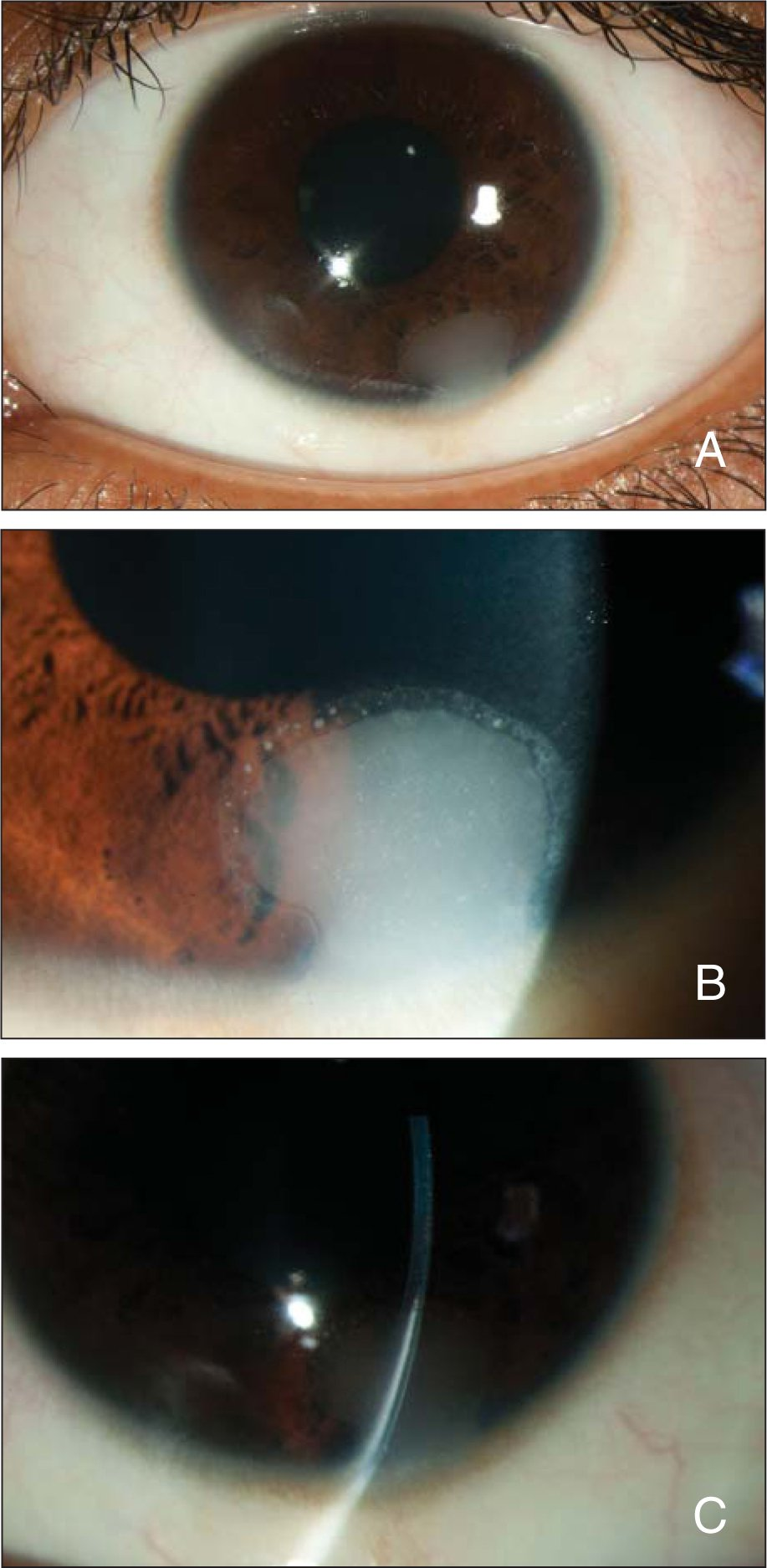 Color photographs demonstrating (A) a white fan-shaped lesion arising near the limbus, (B) a biomicroscopic appearance of a lesion with a slightly scalloped edge, and (C) a biomicroscopic cross-sectional appearance of a lesion.