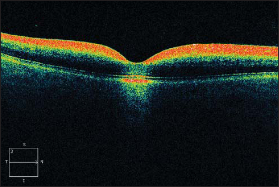 Right eye spectral-domain optical coherence tomography of case 1 showing increased reflectivity of the inner retinal layers.
