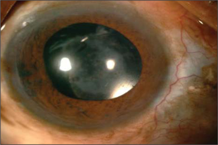 Slit-lamp photograph of the right eye showing healed abscess with scleral thinning and uveal show over the medial rectus muscle area.