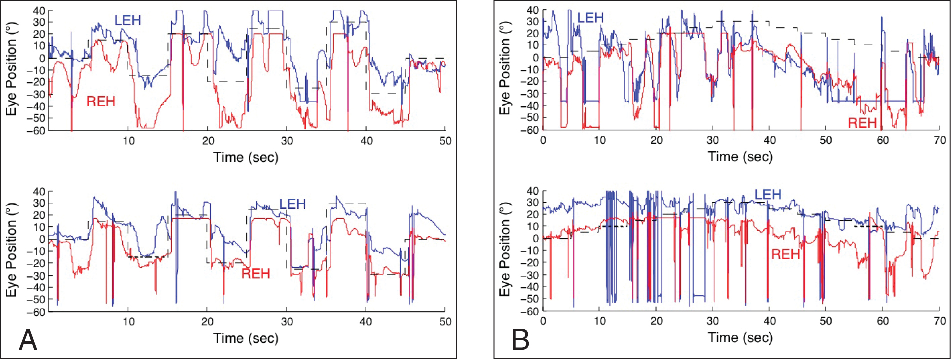 Horizontal eye-movement data during binocular viewing of the right (REH) and left (LEH) eyes in response to target positions (shown dashed). (A) Targets of increasing lateral gaze angles, alternating in direction. (B) Targets stepping to the right and back to center. In both A and B, the top traces are preoperative tenotomy and reattachment and the bottom traces are postoperative tenotomy and reattachment. Dashed lines are target positions and large transient deflections or saturations denote transient data dropout (due to blinking) or saturation.