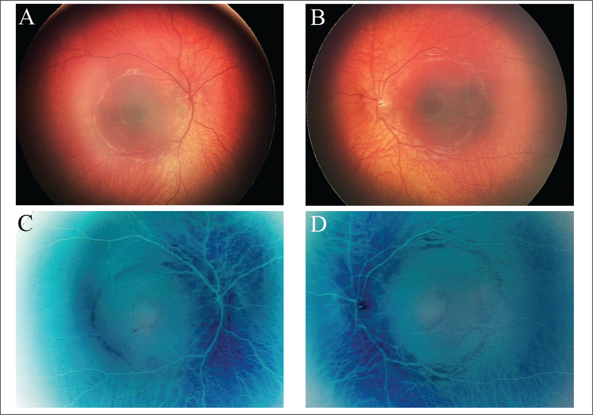 (A) Right and (B) left fundus photographs of the 10-month-old male infant (case 1) showing bilateral retinal pigment epithelial mottling and a circular macular lesion. Color negative fundus images of the (C) right and (D) left eyes.