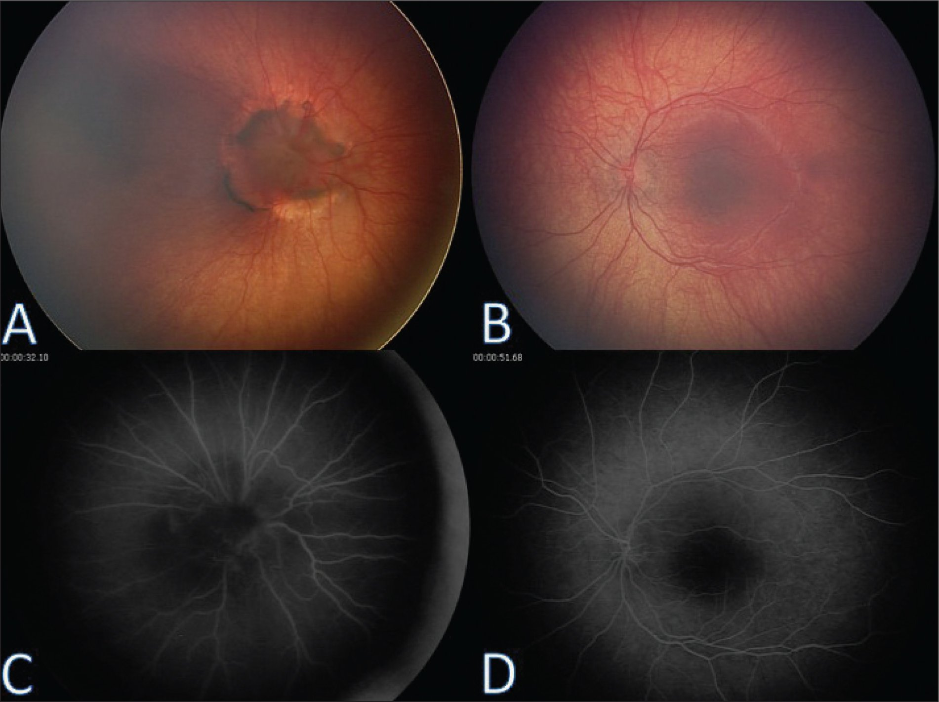 Funduscopic and fluorescein angiography of the right and left eyes. (A) Morning glory disc anomaly in the right eye with enlarged optic disc, prepapillary gliosis, and radially emanating vessels with circumpapillary hyperpigmentation and retinal pigment epithelium atrophy. (B) The normal funduscopic findings in the left eye. (C) On fluorescein angiography the right eye demonstrated supernumerary radial vessels in linear orientation with 'spoke wheel appearance'. (D) The normal fluorescein angiogram in the left eye.