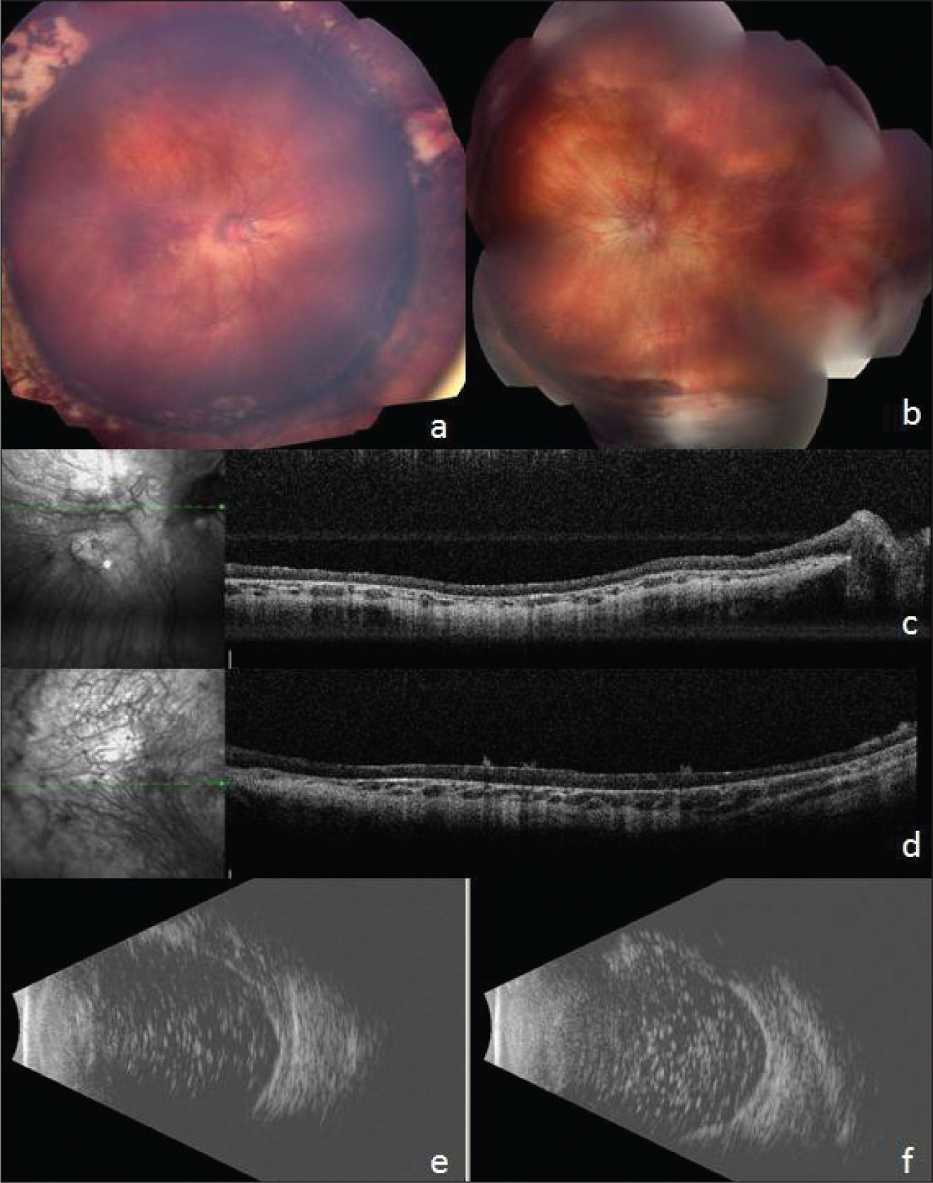Fundus photographs, spectral-domain optical coherence tomography, and echography at 5 years of age. Color fundus photographs of the (A) right and (B) left eyes conveying sharp discs, slightly tortuous retinal vessels, diffuse atrophy of the retinal pigment epithelium, normal choroidal vasculature appearance, and attached retina with circumferential scleral buckles. Spectral-domain optical coherence tomography (Heidelberg Engineering, Heidelberg Germany) images of the (C) right and (D) left eye showing significant retinal thinning precluding clear identification of the retinal layers; there is loss of foveal contour and choroidal thinning. Echography of the left eye (E) superiorly and (F) inferiorly, demonstrating attached retina and residual silicone oil.