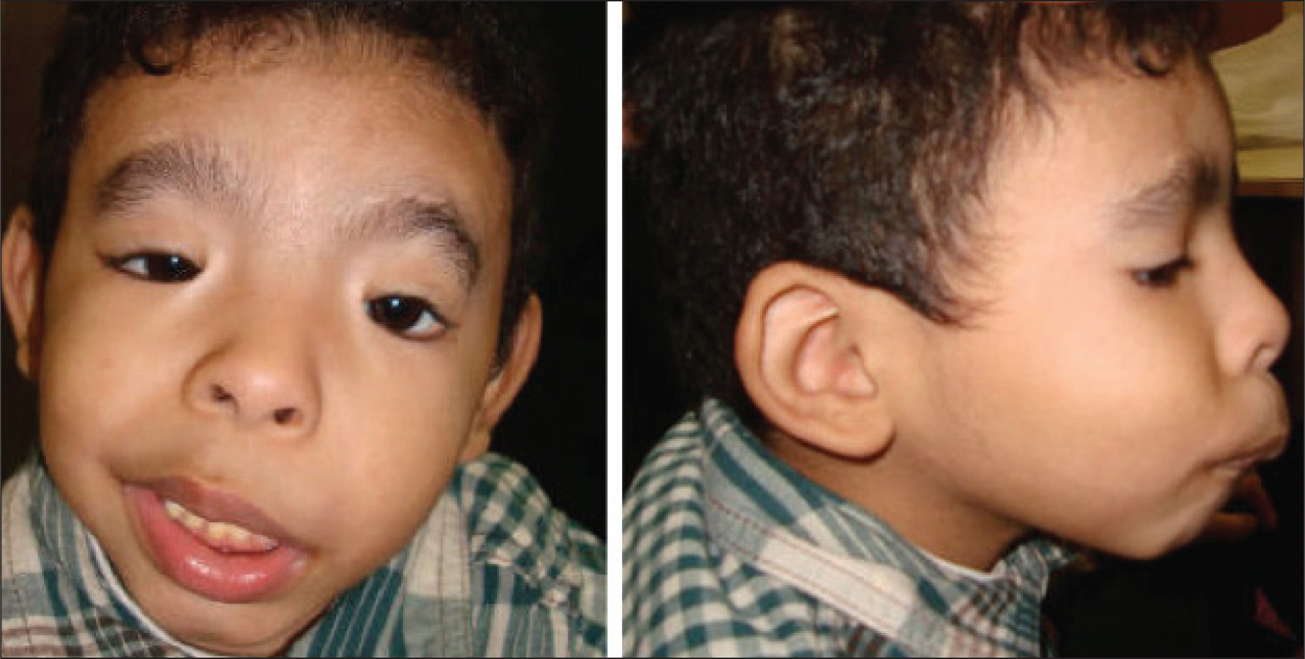 In primary position, blepharophimosis, telecanthus, ptosis, and epicanthus inversus can be appreciated. In side profile, the child's micrognathia can be appreciated. He attempted to look to his right in the side profile image, but he was unable.