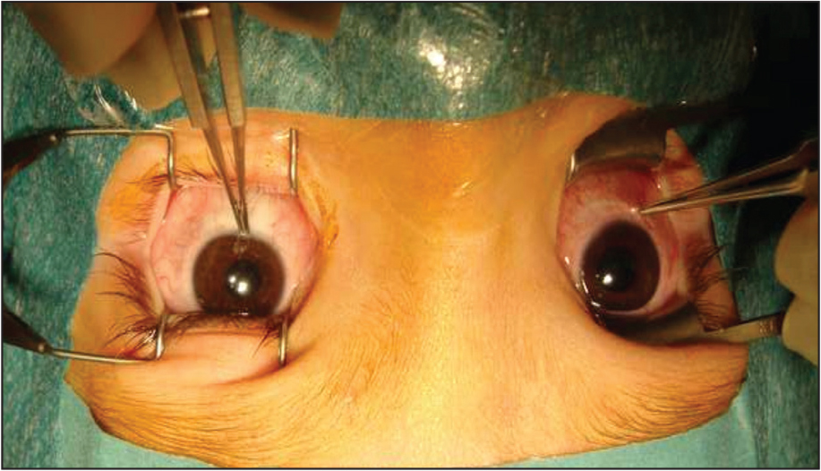 Intraoperative forced duction testing after prior inferior rectus recessions showing persistent severe restriction to elevation.