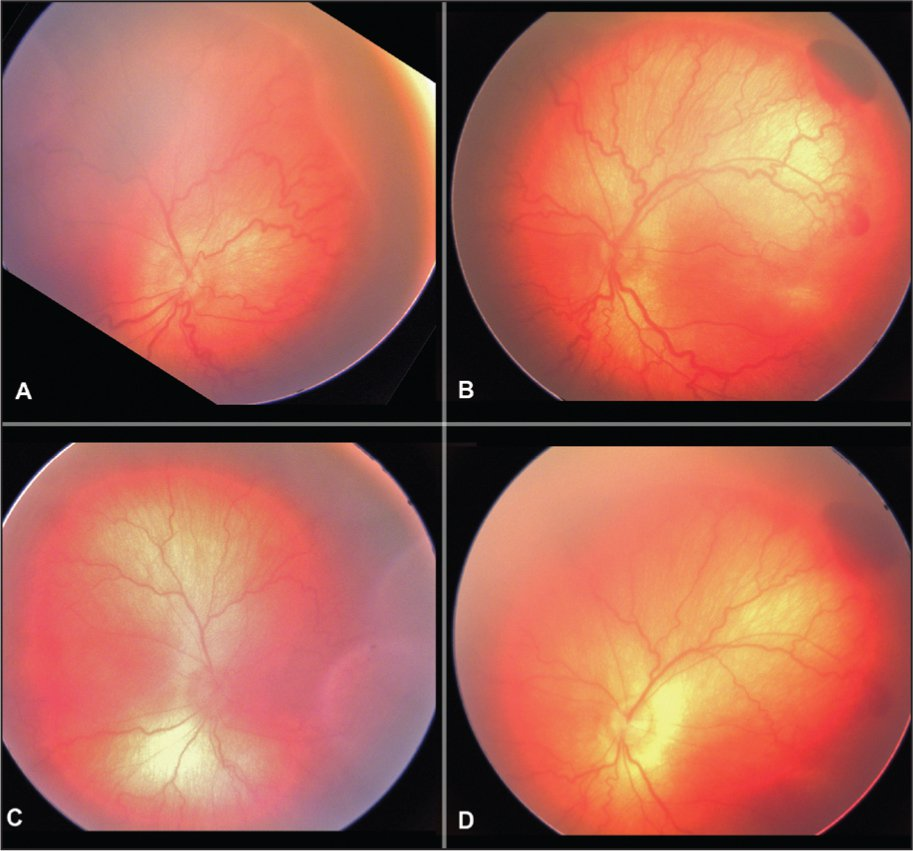 (A) Stage 2 retinopathy of prematurity (ROP) in the right eye. Vascular dilatation and tortuosity in two quadrants. (B) Stage 2 ROP in the left eye. Vessel dilatation in four quadrants with pre-retinal hemorrhage temporally. (C) The right eye 2 days postoperatively showing less vessel dilatation and tortuosity. (D) The left eye 2 days postoperatively showing less vessel dilatation and tortuosity.