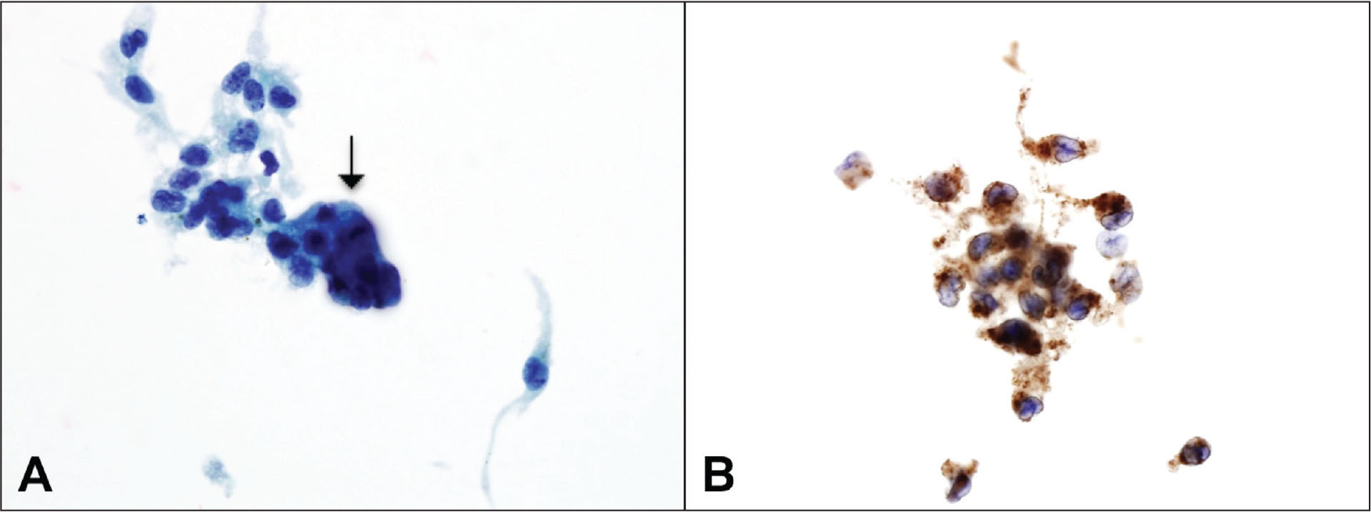 (A) Cytopathology showing lymphocytes and a giant cell (arrow). (B) Immunocytochemical stain for CD68, a histiocyte marker, was positive, consistent with iris juvenile xanthogranuloma (original magnification ×100).