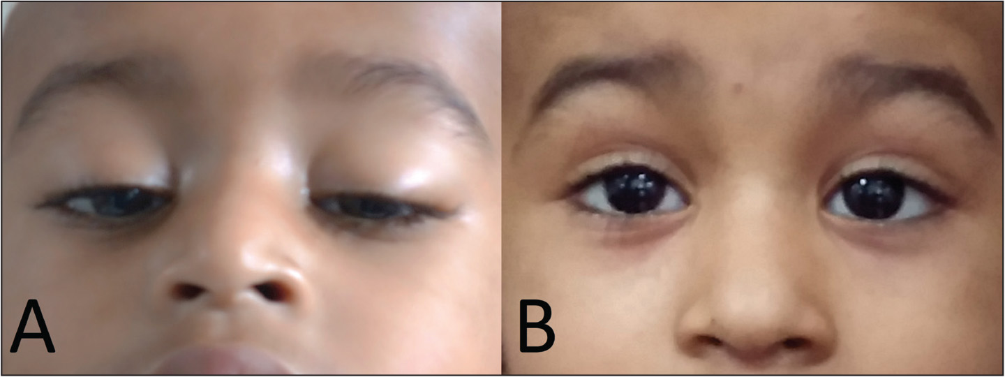 (A) Photograph depicting the acquired ptosis. Note the chin-up position adopted by the child due to ophthalmoplegia. (B) Post-treatment photograph demonstrating complete recovery of the ptosis.