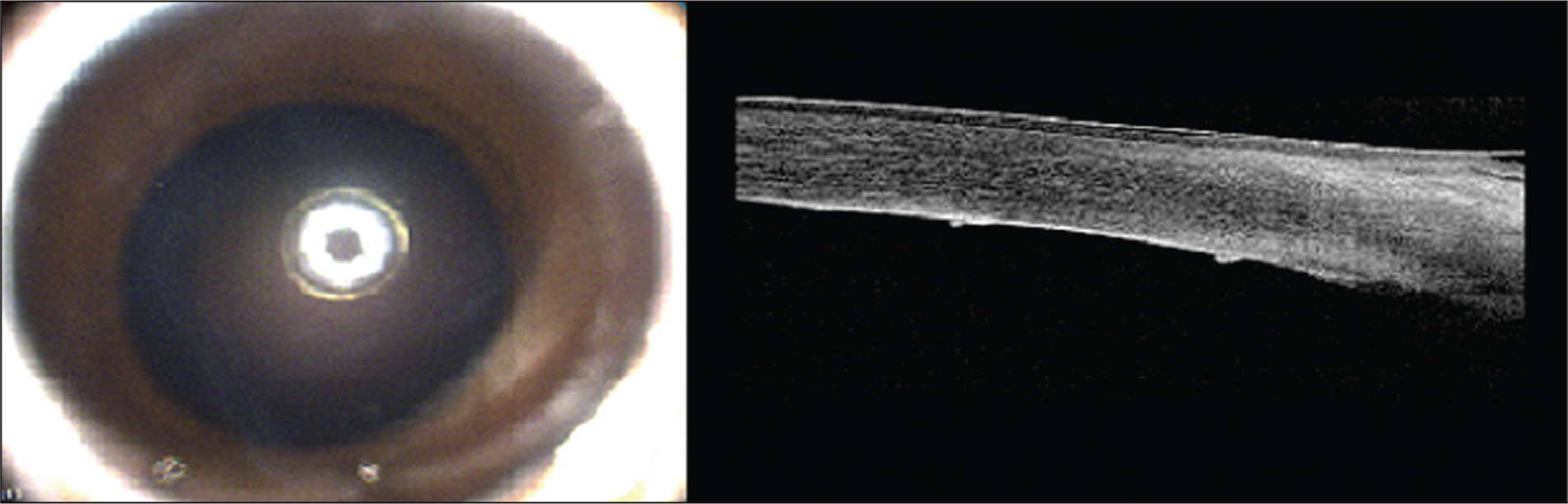 External photograph and anterior segment optical coherence tomography (AS-OCT) of patient 3. Multi-directional Haab striae involving the visual axis (left). AS-OCT showed the classic curled thickened edges of the broken Descemet membrane (right).