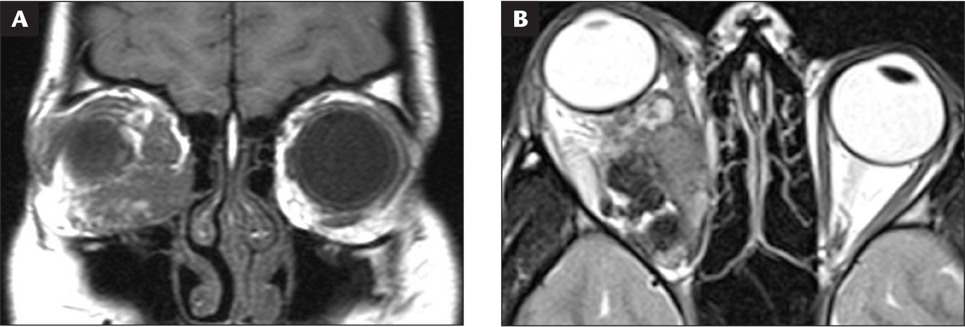 Magnetic resonance imaging studies at initial presentation. (A) T1-weighted coronal image demonstrates that the main bulk of the tumor is located in the inferior orbit with an unaffected supraorbital nerve. (B) T2-weighted axial frame reveals heterogenous signal intensity probably corresponding to heterologous tissue elements within the tumor.