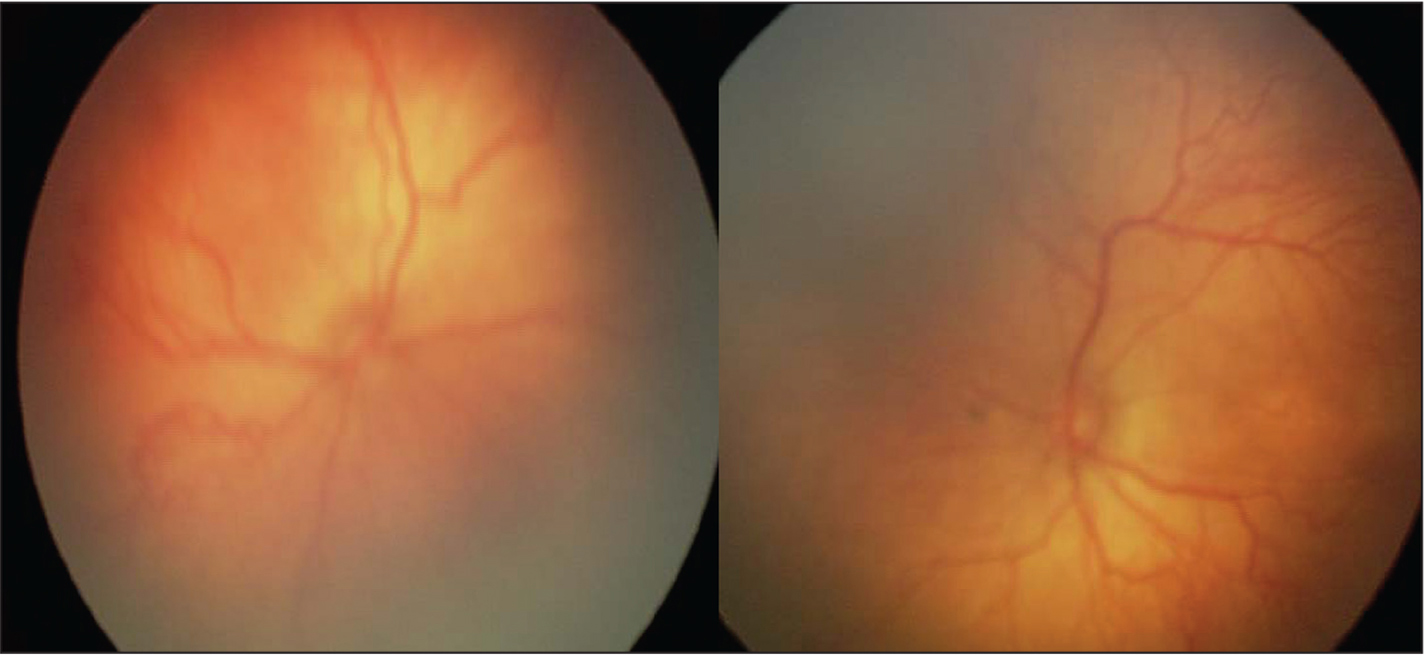 Case 2 initial eye examination at post-menstrual age 34 and 6/7 weeks in the right eye (left) and left eye (right).