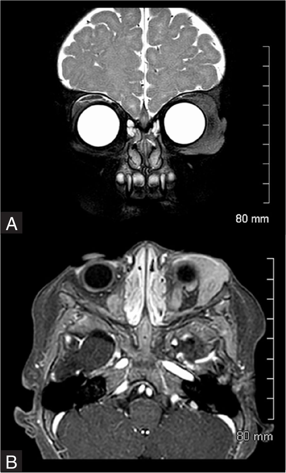 Magnetic resonance imaging. (A) Coronal view revealed soft tissue mass involving the temporal orbit of the left eye. (B) Axial view revealed left orbital soft tissue mass.