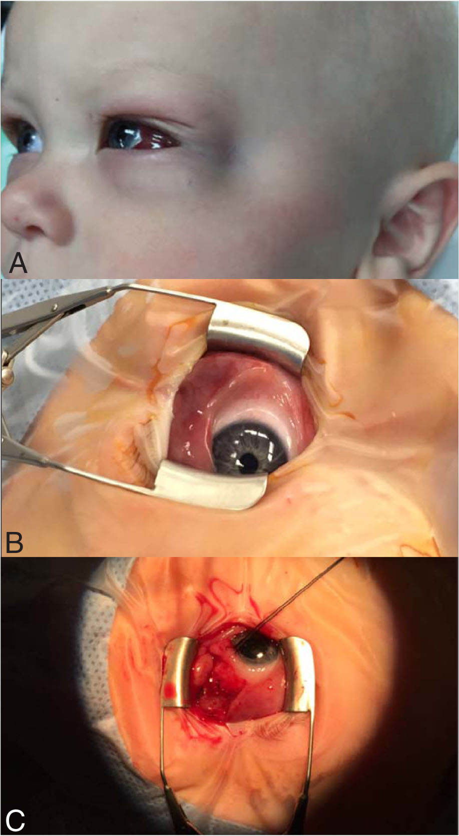 Evaluation before and after biopsy. (A) Left proptosis prior to biopsy. (B) Left orbital mass prior to incisional biopsy. (C) Left orbital mass after incisional biopsy.