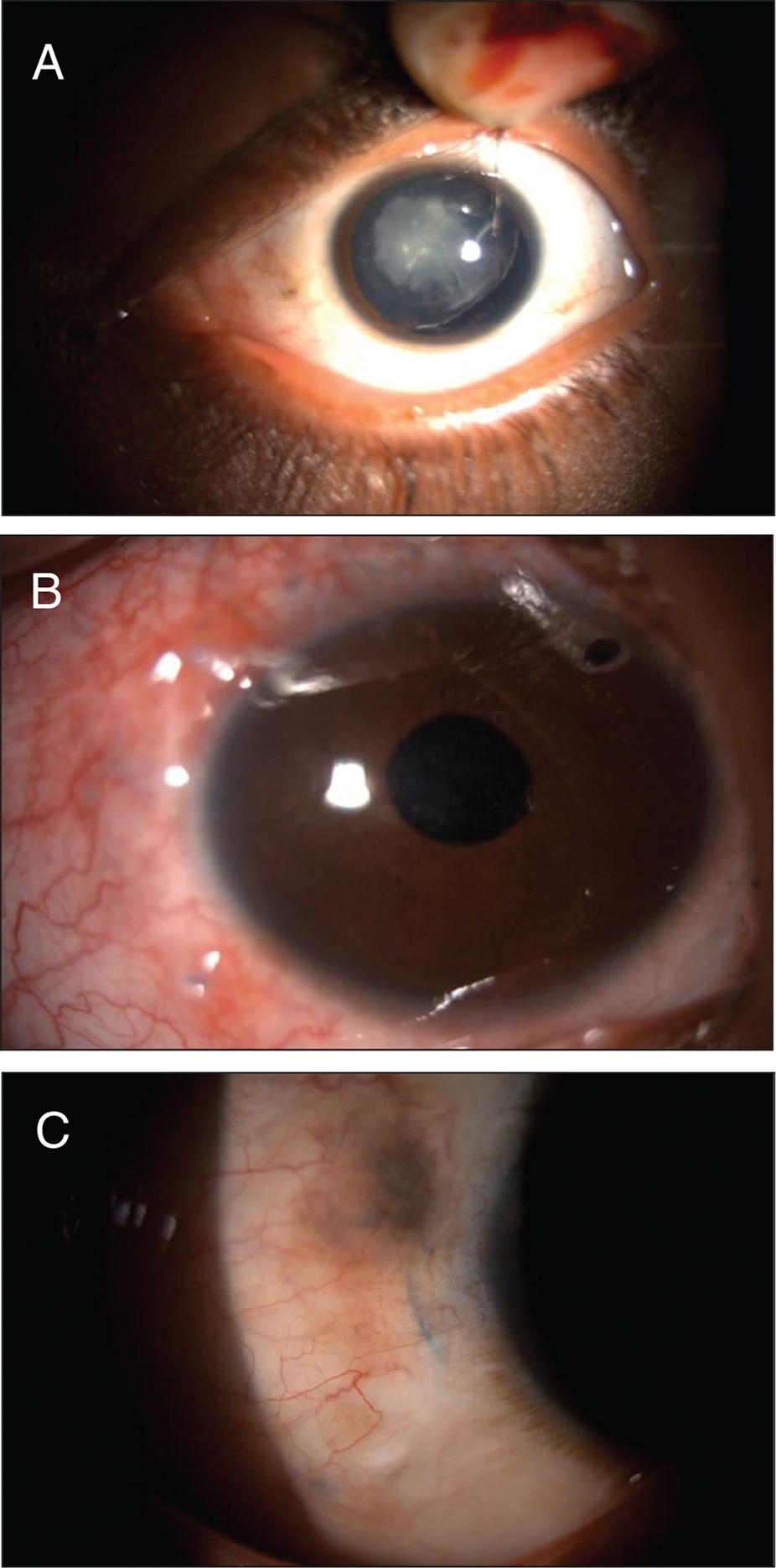 A 5-year-old boy with traumatic subluxation of the lens (A) preoperatively, (B) 1 day postoperatively showing well-centered intraocular lens and patent peripheral iridotomy, and (C) slit photograph showing the haptic in the scleral groove