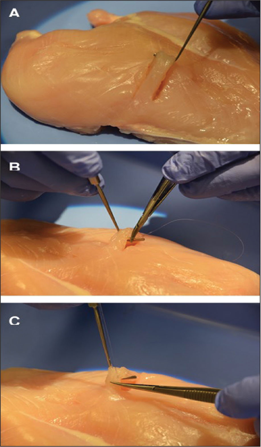 "Chicken breast was used to simulate a rectus muscle in the wet laboratory sessions. (A) The chicken strip is pulled up with the hook, (B) a 6-0 polyglactin 910 suture is passed through the ""muscle,"" and (C) the chicken strip is then disinserted with Westcott scissors."