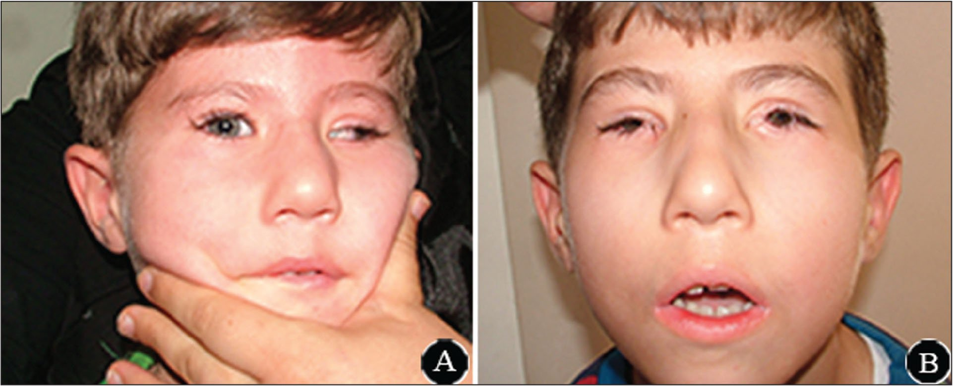 Photographs of case 2. (A) Expressionless face and large angle exotropia. (B) Improvement in exotropia after strabismus surgeries and improvement in dry eye after puncti occlusion and tarsorrhaphy in the medial and lateral eyelids of both eyes.