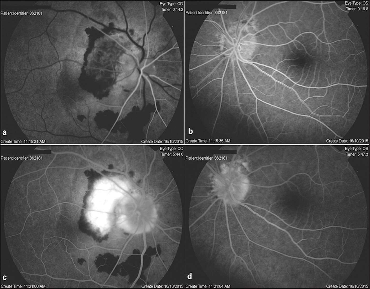 Fundus fluorescein angiography. (A) The right eye at early phase shows hypofluorescence in areas due to hemorrhage, the peripapillary choroidal neovascular membrane (CNVM) superotemporal to the optic disc, and subretinal fluid, of which borders are discriminable, involving the fovea. (B) The left eye at early phase shows mild hyperfluorescence in the peripapillary border. (C) The right eye at late phase shows marked staining of the subretinal neovascular membrane superotemporal to the optic disc and hyperfluorescence of the disc. (D) The left eye at early phase shows mild increase in the hyperfluorescence of the peripapillary border.