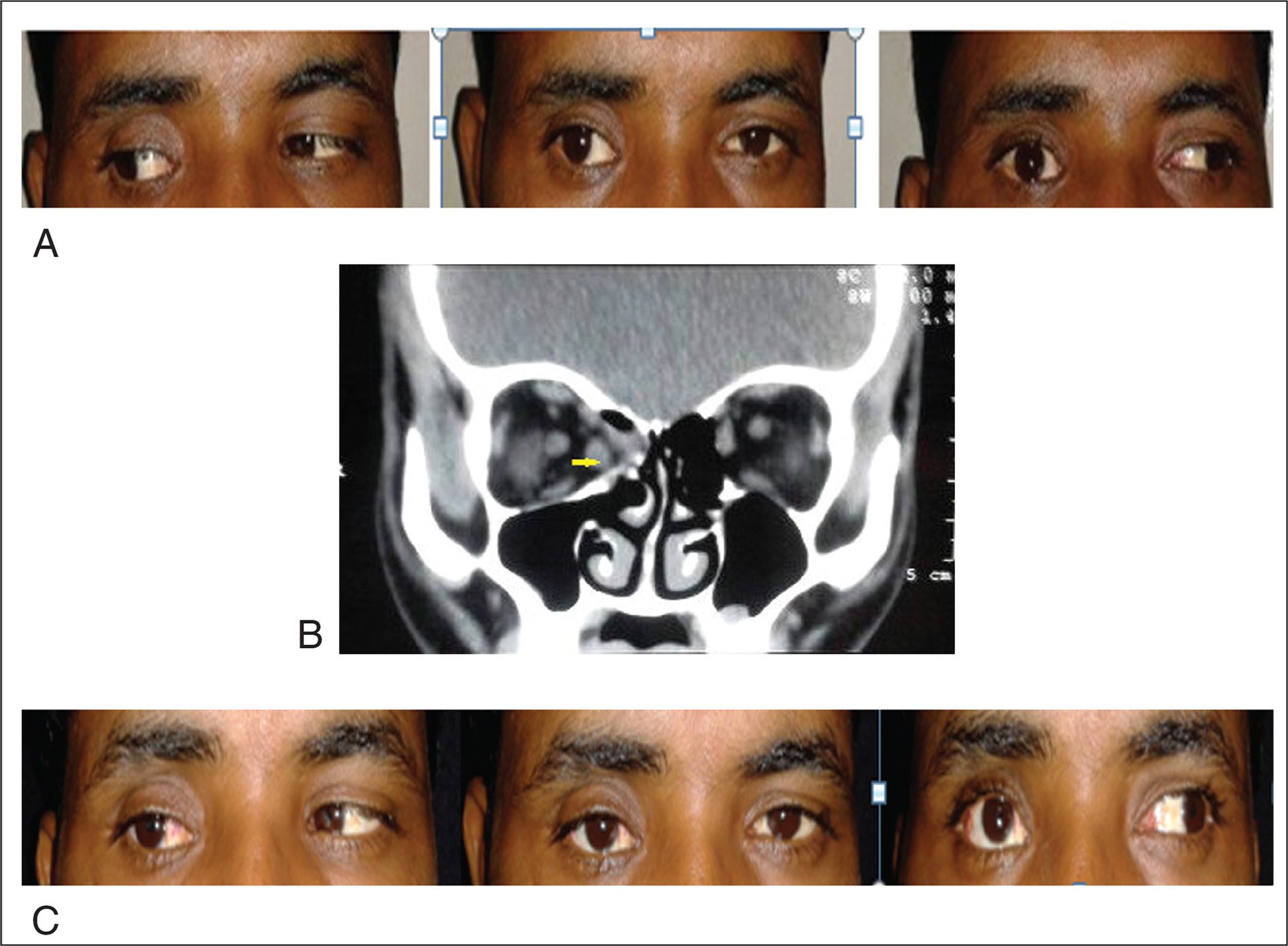 (A) Preoperative clinical photographs of a patient (case 3) with exotropia of the right eye. (B) Orbital non-contrast computed tomography scan showing thinning of medial rectus muscle with bony defect in the right orbit (arrow). (C) Orthotropia in primary gaze and improvement in adduction postoperatively.