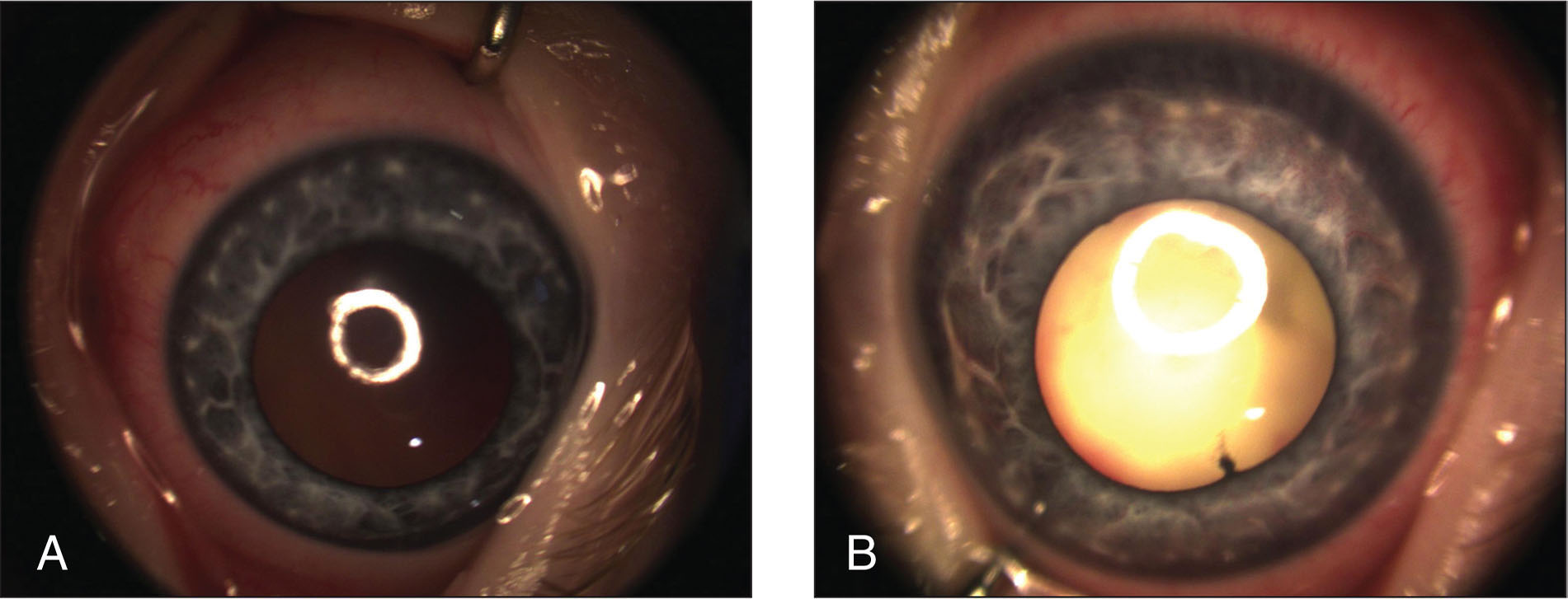 Anterior segment photograph of (A) the right eye showing iris Brushfield spots and (B) the left eye showing iris Brushfield spots, engorged iris vessels, and a prominent retrolental white mass.