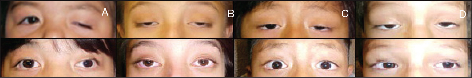 Preoperative (upper row) and postoperative (lower row) pictures of the patients with the longest follow-up. (A) 96 months, (B) 67 months, (C) 38 months, and (D) 56 months.