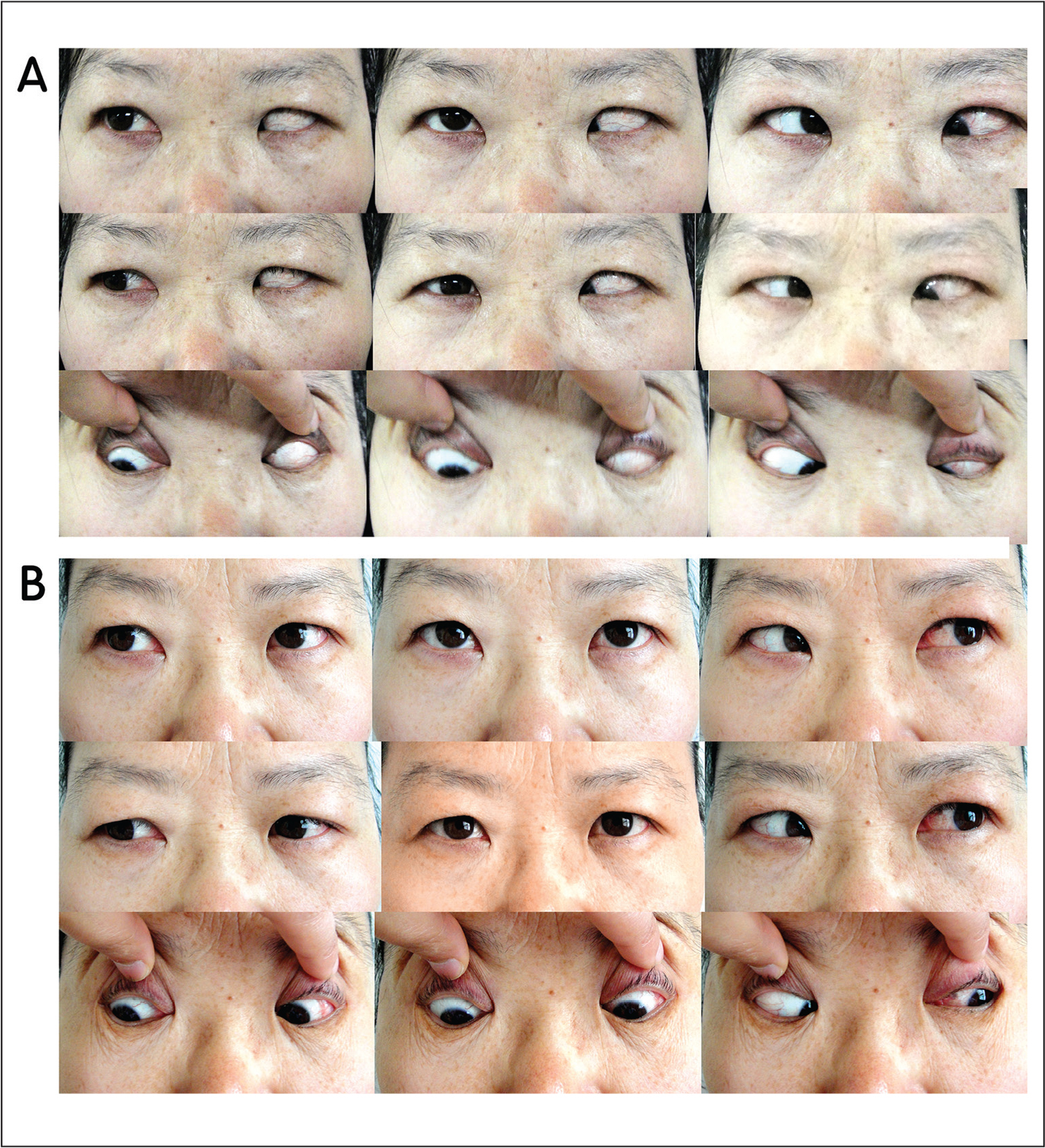 (A) Preoperative photographs showing more than 45° deviation of the left eye and extremely limited superior and lateral ocular motility. (B) Photographs of the same patient at the 3-month follow-up after surgery. The photographs show the primary position and normal ocular motility.