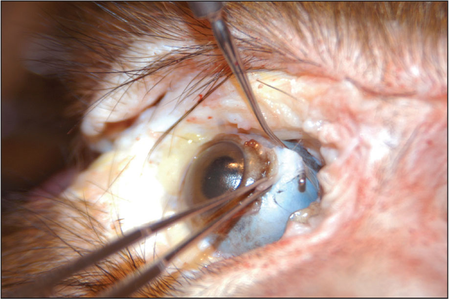 At necropsy, the medial rectus muscle tendon is anchored firmly to the normal scleral insertion site, despite free tenotomy 8 years earlier.