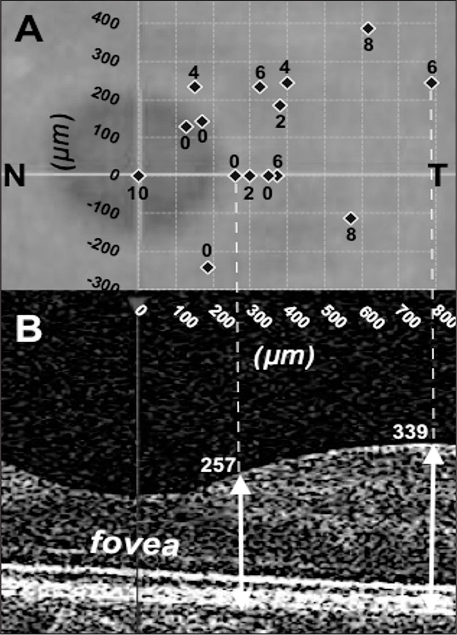 (A) Distribution of retinal fixation points (rhombuses) of strabismic eyes superimposed on a background image of the central macular area. The coordinates (0, 0) were considered to be the anatomical center of the fovea. The deviation of each fixation point is expressed in prism diopters. N = nasal; T = temporal (B) Cross-section of the optical coherence tomography scan corresponding to the upper image. The retinal thickness at the fixation point is specified in cases 4 and 6.