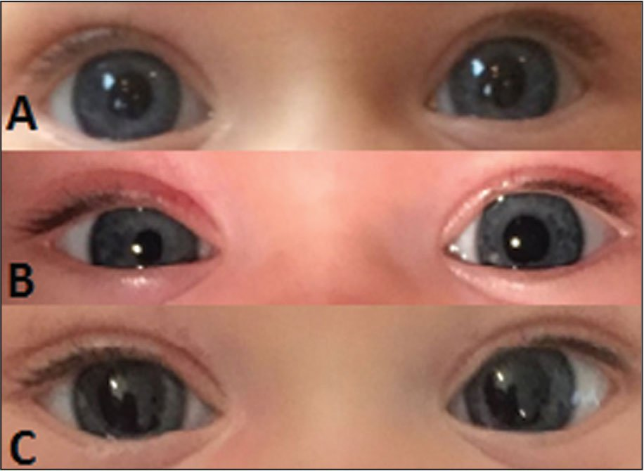 (A) Normal pupils before surgery. (B) Miosis and ptosis in the right eye. (C) Resolved miosis and ptosis in the right eye.