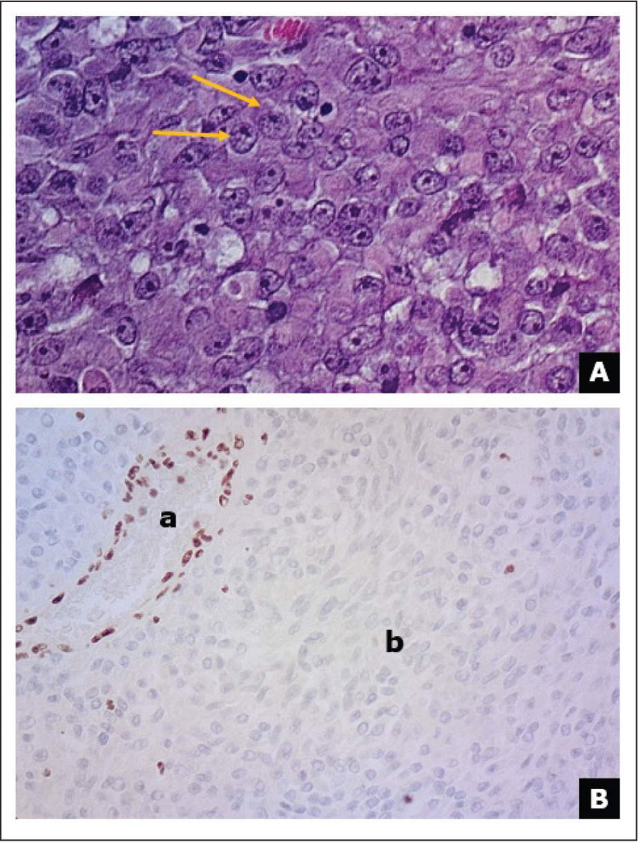 (A) Microscopy observation of proliferating large cells with an eosinophilic cytoplasm, a typical eccentric nucleus and prominent nucleoli (arrows). (B) Immunohistochemical staining. INI1 staining showing (a) positive staining in endothelial cells and (b) loss of immunoreactivity in rhabdoid tumor cells.
