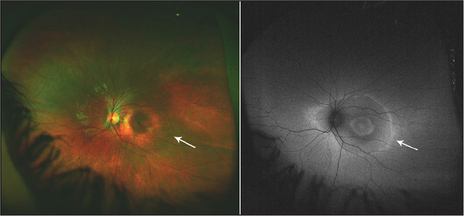 Left eye of the same patient as in Figure 1 shows a relatively normal-looking color fundus photograph (left panel). The right panel shows ultra-wide–field fundus autofluorescence demonstrating a hyperautofluorescent ring (white arrow).