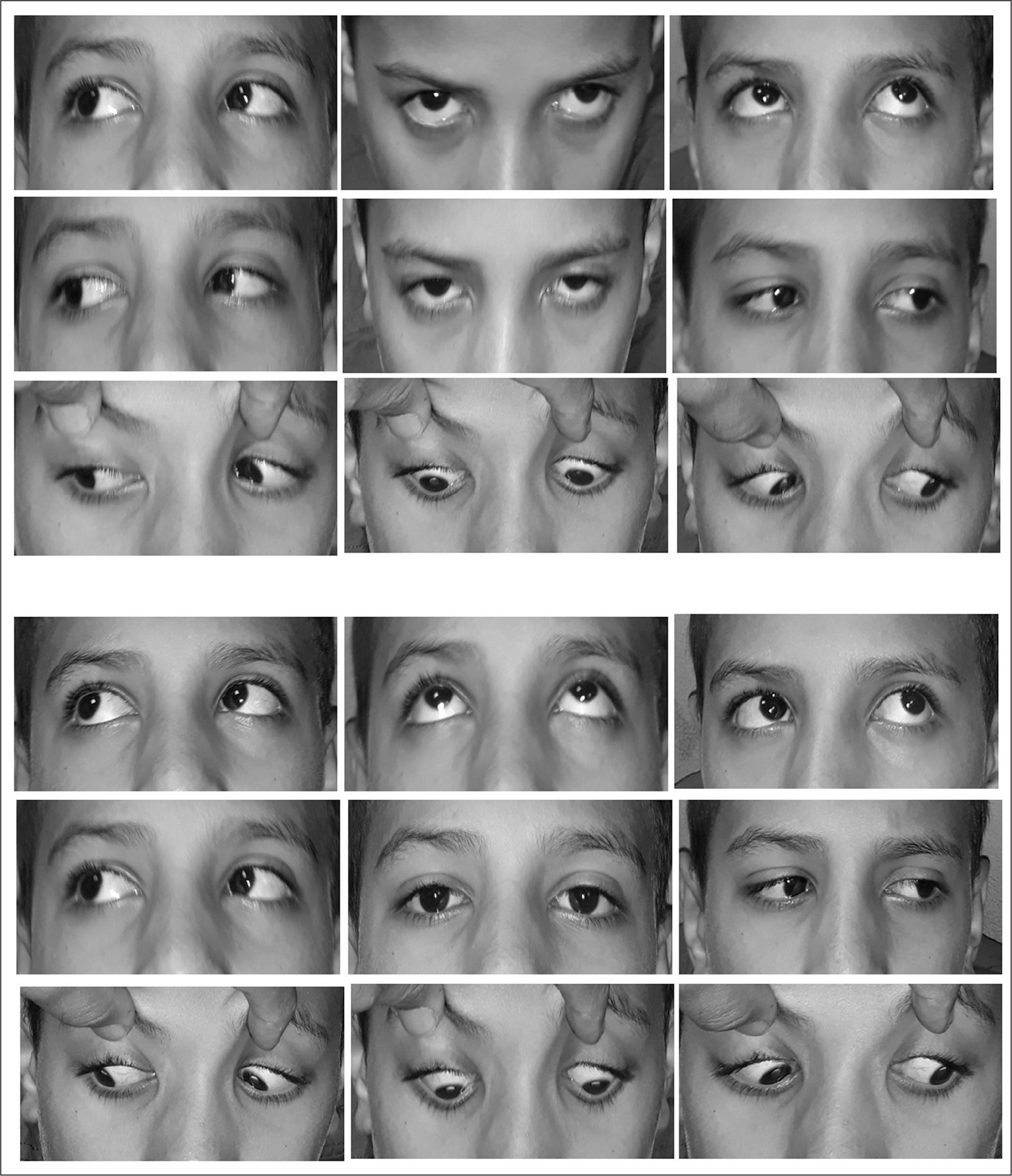 Top panels show preoperative photographs of a patient with V-pattern exotropia with no oblique dysfunction. Bottom panels show improvement of the V-pattern 6 months after bilateral lateral rectus recession 5 mm with half-tendon upward transposition.