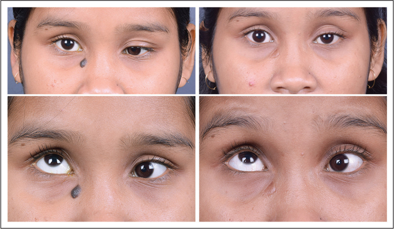 Patient 3 with monocular elevation deficit. (Top left) The patient has significant hypotropia and moderate esotropia in the primary position preoperatively. (Top right) At 12 months after lateral rectus transposition with Foster's augmentation alone, the patient shows significant improvement in both the vertical and horizontal deviation. (Bottom left) A −4 limitation of elevation is seen preoperatively in primary up gaze. (Bottom right) At 12 months postoperatively, the limitation of elevation has reduced to −3.