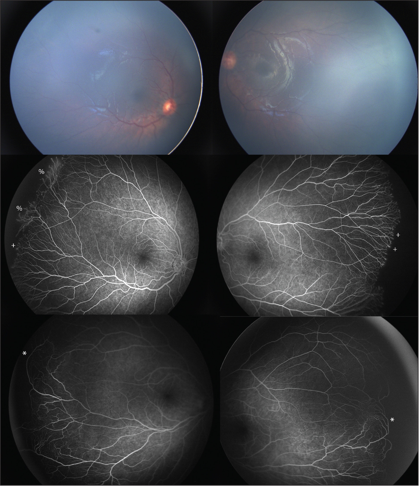 Retinal images and fundus fluorescein angiography (FFA) of pediatric retinas demonstrating persistent avascular retina and vascular abnormalities at the vascular/avascular junction. Retinal images (top) and FFA (middle) of the same eyes showing avascular peripheral retina. Abnormal vessels at the avascular border are indicated by a percent symbol (%) and vessel end budding are indicated with a plus sign (+). FFA (bottom) of another patient with avascular peripheral retina demonstrates vessel anastomoses/shunting and are indicated with an asterisk (*).