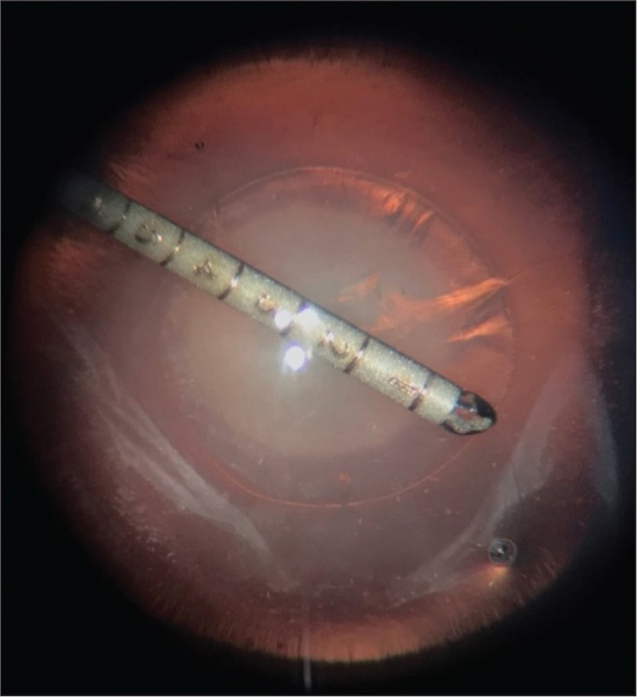 Intraoperative measurement of rhexis diameter using the calibrated MST CRF capsulorhexis forceps (MST, Redmond, WA).