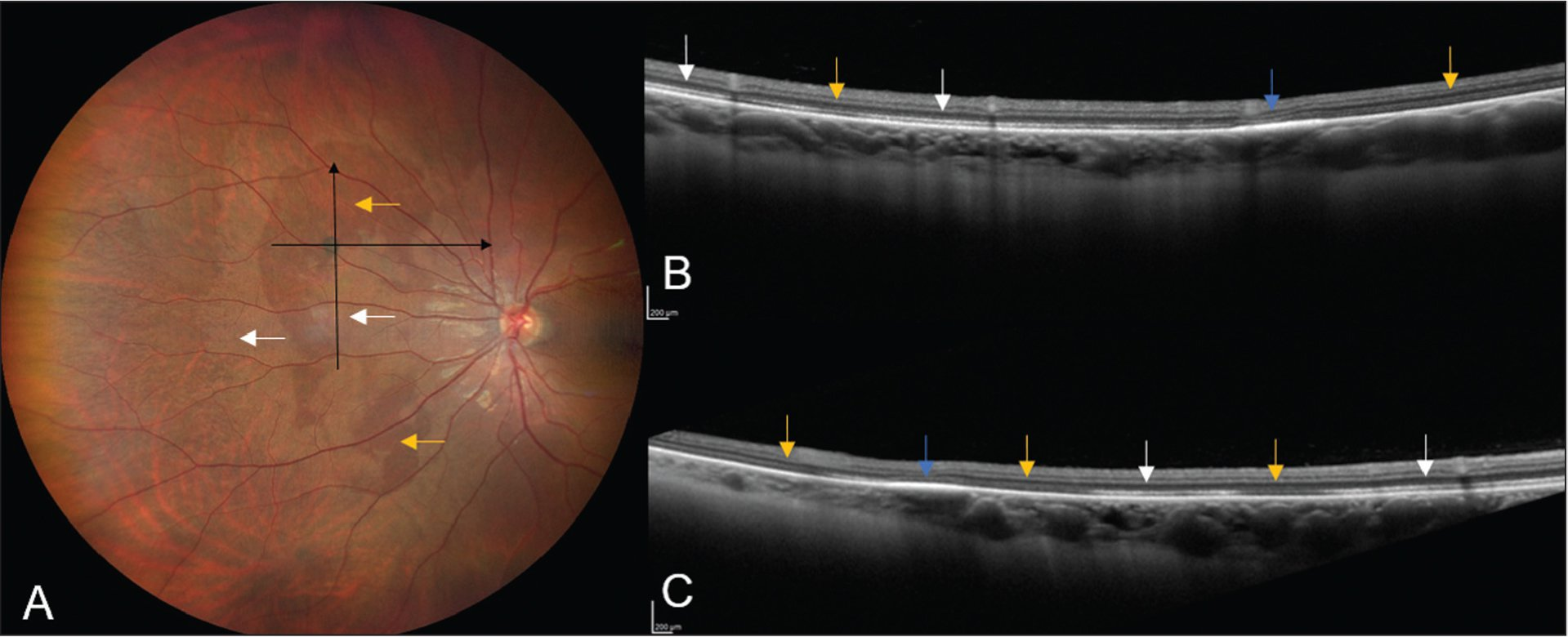A 29-year-old woman with a small focus of congenital hypertrophy of the retinal pigment epithelium in the nasal fundus was noted to have (A) surrounding white without pressure (white arrows) and dark without pressure (yellow arrows) abnormalities. Optical coherence tomography (OCT) (vertical cut) shows (B) the transition from hyperreflectivity (white without pressure [white arrows]) to hyporeflectivity (dark without pressure [yellow arrows]) of the ellipsoid layer with thickened retinal pigment epithelium (blue arrow) corresponding to congenital hypertrophy of the retinal pigment epithelium. OCT (horizontal cut) shows (C) similar outer retinal transitions from hyporeflectivity (dark without pressure [yellow arrows]) to hyperreflectivity (white without pressure [white arrows]) surrounding congenital hypertrophy of the retinal pigment epithelium (blue arrow).