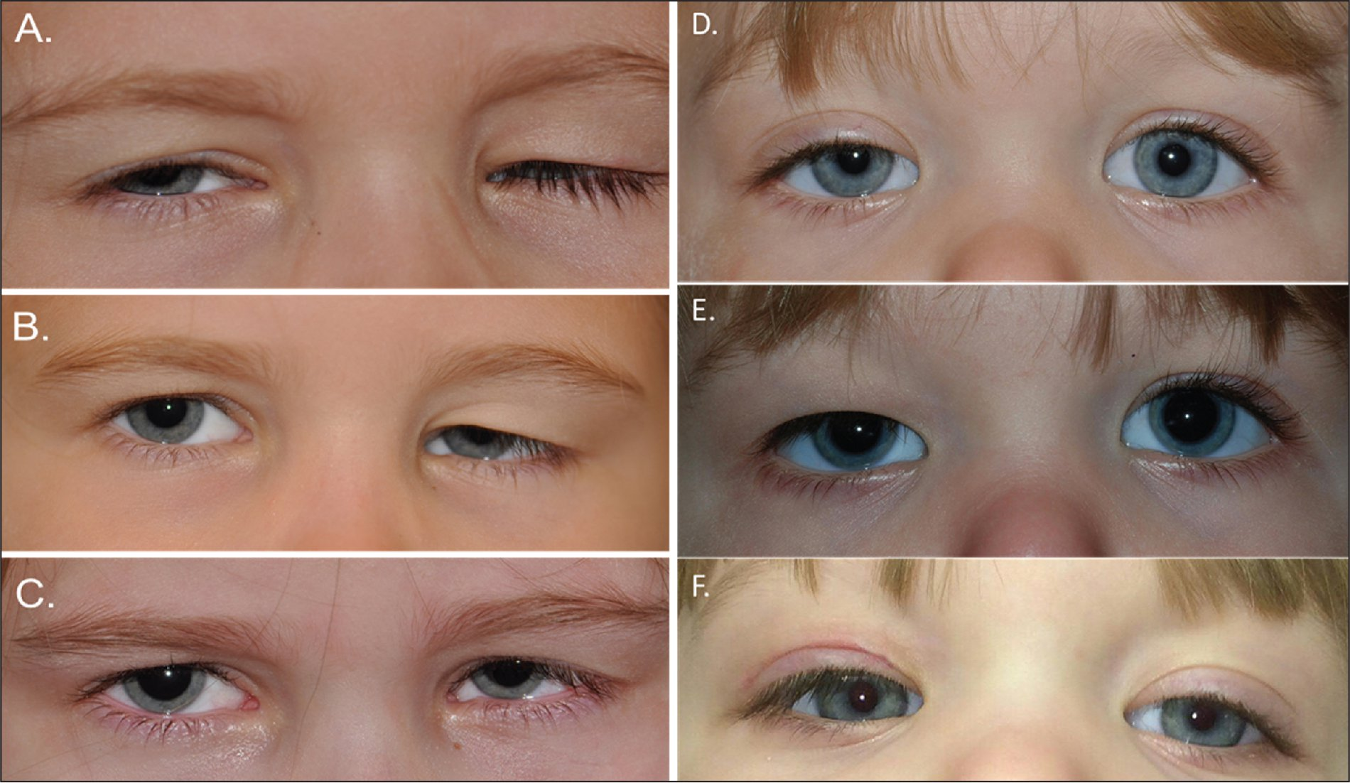 Preoperative photograph of patient 2 (left eye) showing (A) congenital ptosis, (B) post-levator resection in the left eye (showing excess tissue overhanging the upper eyelid), and (C) post-sulcoplasty with improved sulcus and eyelid crease. Preoperative photograph of patient 3 (right eye) showing (D) right congenital ptosis, (E) post-levator resection in the right eye with excess tissue overhanging the upper eyelid, and (F) post-sulcoplasty with improved sulcus and eyelid crease.